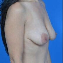 oblique view of patient before breast lift