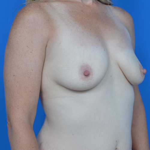 before breast lift right oblique view case 813