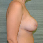 before breast lift right profile case 806