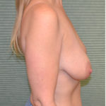 before breast lift left profile view case 771