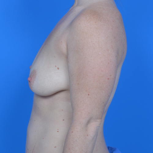 before breast lift left side view case 778