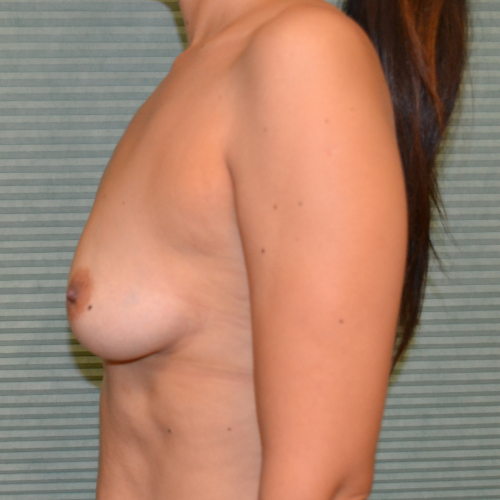 before breast lift left profile view case 785