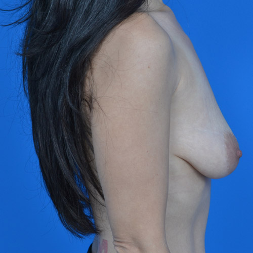 before breast lift right side view case 792