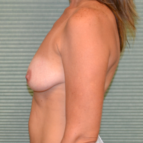 before breast lift left profile view case 799