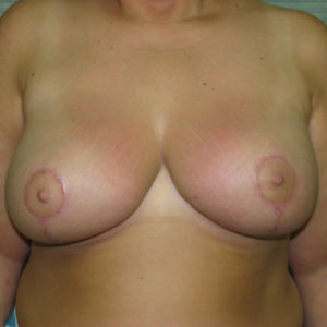 after breast reduction front view case 820