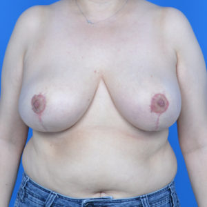 after breast reduction front view case 825
