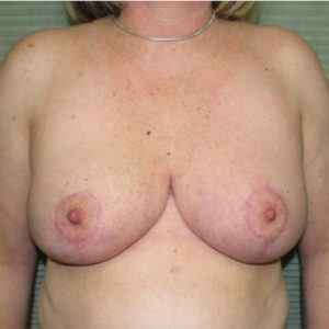 after breast reduction front view case 832
