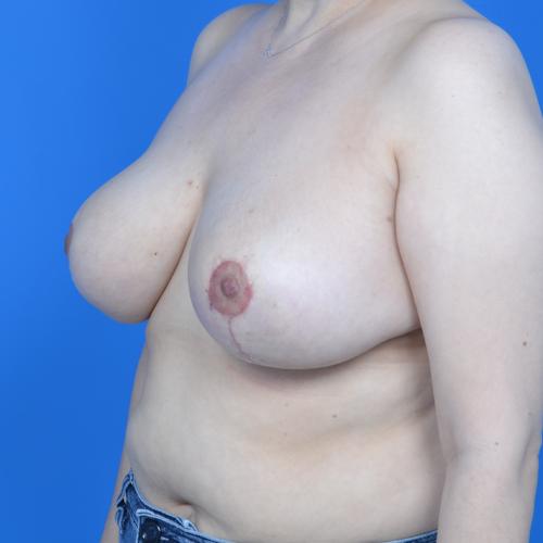 after breast reduction left oblique case 825