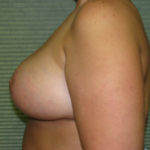 side view of breasts after reduction case 820