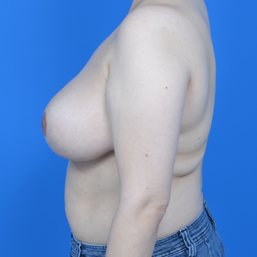 after breast reduction left side case 825