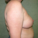 after breast reduction right side view case 832