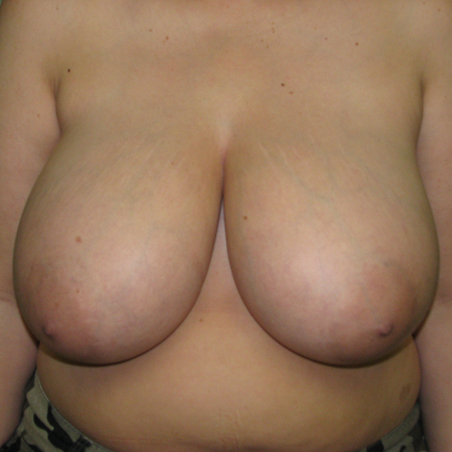 before breast reduction case 820 front view
