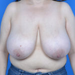 before breast reduction front view case 825