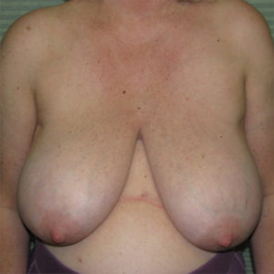 before breast reduction front view case 832