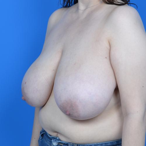 before breast reduction left oblique case 825