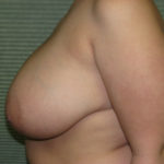 before breast reduction side view case 820