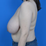 before breast reduction left side case 825