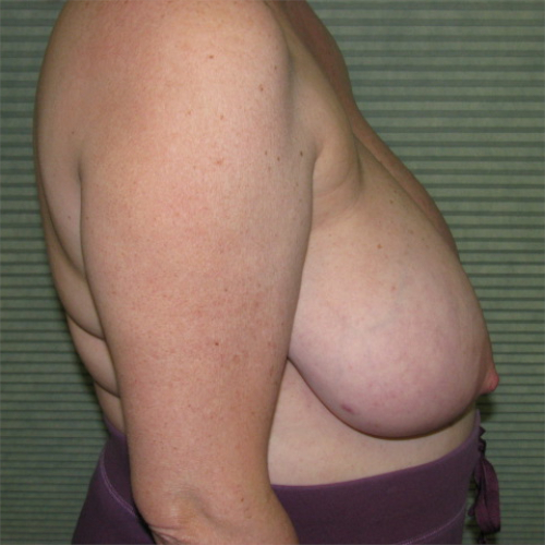 before breast reduction right side view case 832