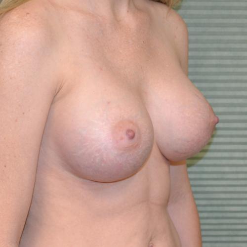 after breast augmentation oblique view case 862