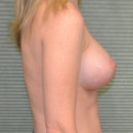 after breast surgery profile view case 862