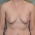 before breast surgery front view case 862
