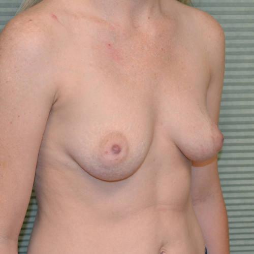 before breast augmentation oblique view case 862