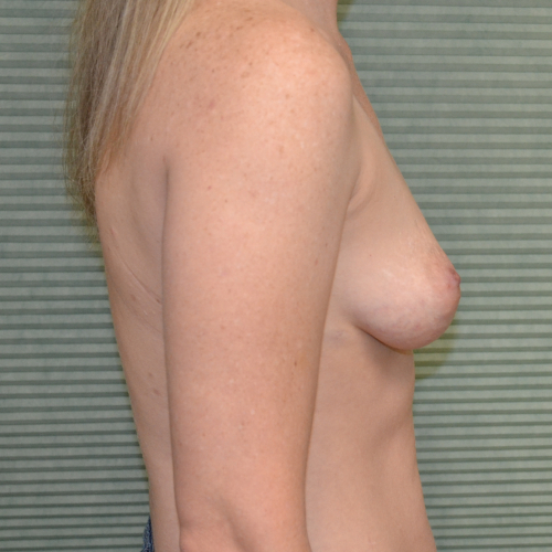 before breast augmentation left profile view case 862