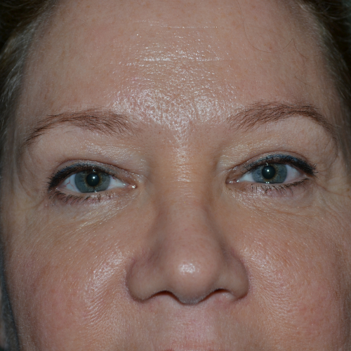 upper and lower blepharoplasty and browlift case 929