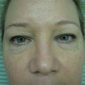 before blepharoplasty and browlift case 929
