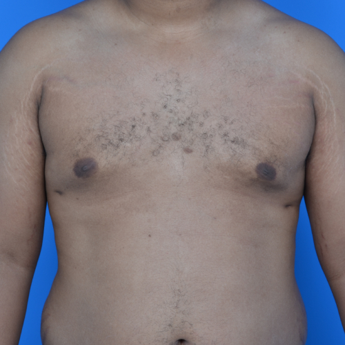 gynecomastia after surgery front view case 951