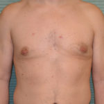 gynecomastia after surgery front view case 958