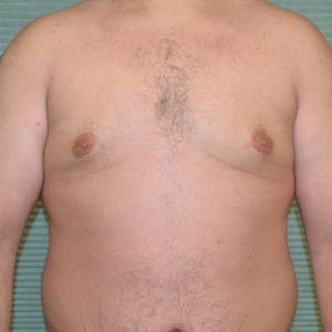 gynecomastia after surgery front view case 965