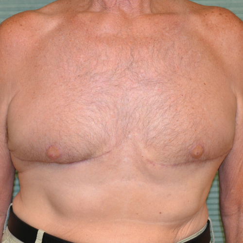after male breast reduction front view case 972