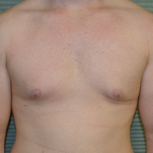 after male breast reduction front case 984