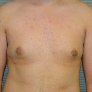 after male breast reduction front view case 984