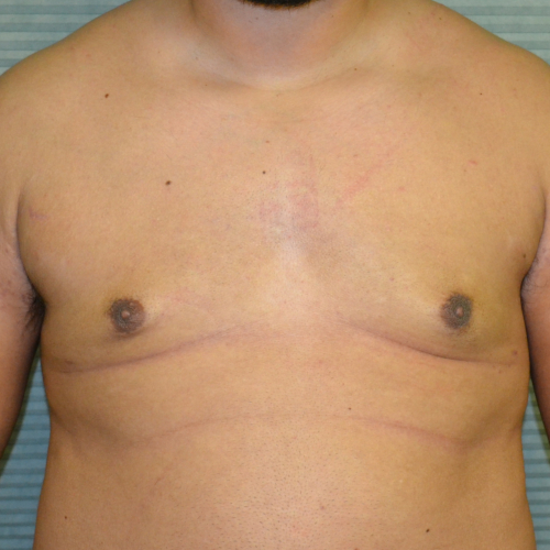 after gynecomastia surgery front view case 991