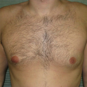 after male breast reduction front view case 1004