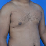 gynecomastia after surgery right oblique view case 951
