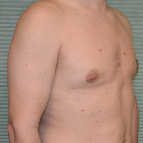 gynecomastia after surgery right oblique view case 958
