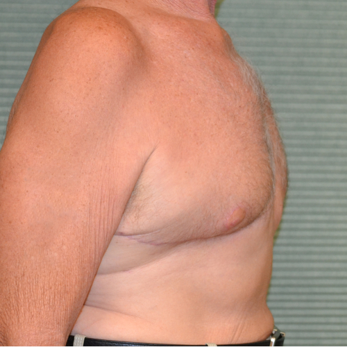 after male breast reduction oblique view case 972