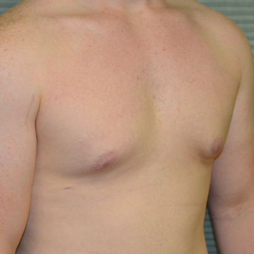 after male breast reduction right oblique case 979