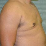 after gynecomastia surgery oblique view case 991
