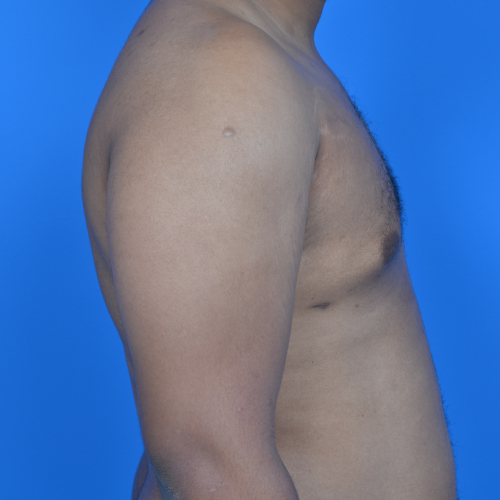 gynecomastia after surgery right profile view case 951