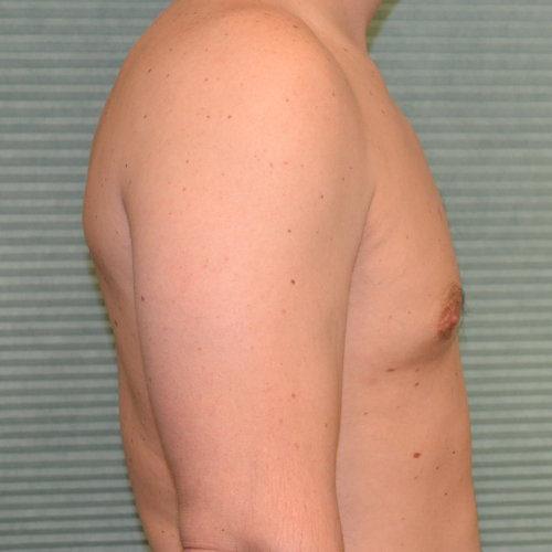 gynecomastia after surgery right profile view case 958