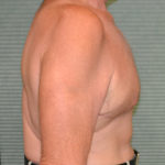 after male breast reduction right view case 972