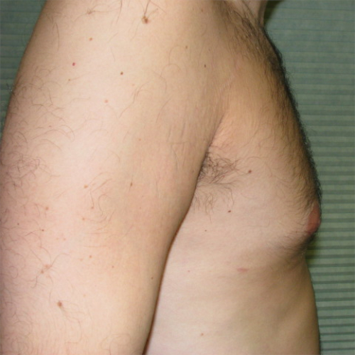 after male breast reduction right profile case 1004