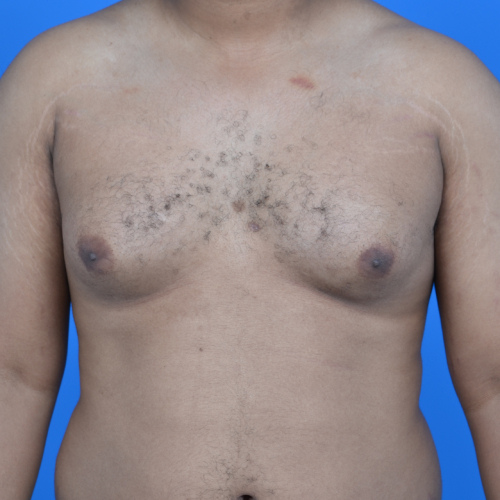gynecomastia before surgery front view case 951