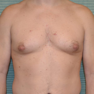 gynecomastia before surgery front view case 958