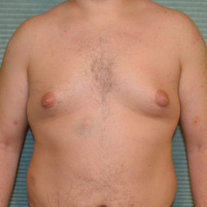 gynecomastia before surgery front view case 965