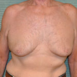 before gynecomastia surgery front view case 972